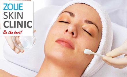 Zolie Skin Clinic deal