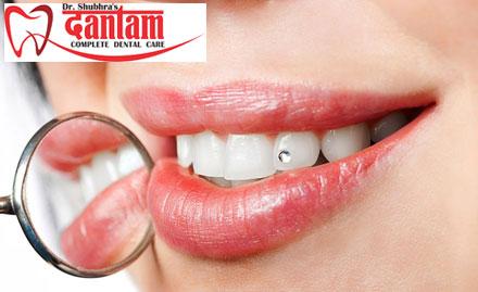 Dr. Shubhra\'s Dantam - Complete Dental Care deal